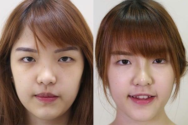 รีวิวศัลยกรรมเสริมจมูก เปลี่ยนสาวจมูกเนื้อเยอะ หน้าไร้มิติ ให้ดั้งโด่งสวยปลายพุ่ง เพิ่มเสน่ห์ให้ดูดีขึ้น