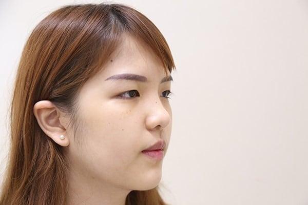 เลือกศัลยกรรมที่ไหนระหว่างไทยกับเกาหลี?