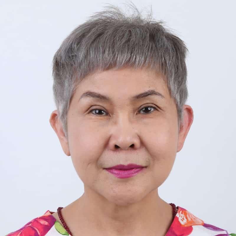 ศัลยกรรมดึงหน้า-ยกคิ้ว ทำให้ใบหน้ายกกระชับดูเต่งตึง ช่วยลดความดูมีอายุบนใบหน้าลง ที่ผู้หญิงสูงวัยก็สามารถทำได้อย่างปลอดภัย 1