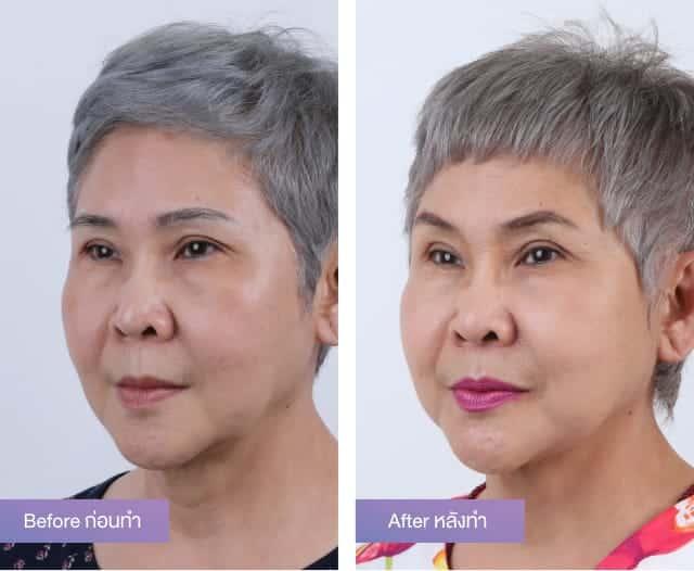 ศัลยกรรมดึงหน้า-ยกคิ้ว ทำให้ใบหน้ายกกระชับดูเต่งตึง ช่วยลดความดูมีอายุบนใบหน้าลง ที่ผู้หญิงสูงวัยก็สามารถทำได้อย่างปลอดภัย 2