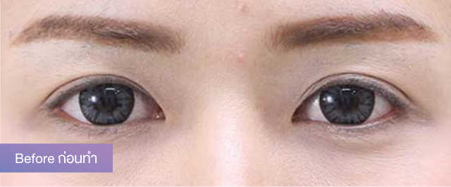 """แชร์ประสบการณ์แก้ปัญหาตาสองชั้นหลบใน จาก """"น้องพลอย สุธาทิพย์"""" กับการทำศัลยกรรมตาสองชั้น บอกลาการติดสติ๊กเกอร์แบ่งชั้นตาไปเลย 3"""