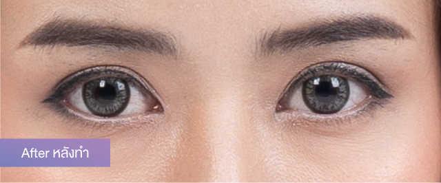 """แชร์ประสบการณ์แก้ปัญหาตาสองชั้นหลบใน จาก """"น้องพลอย สุธาทิพย์"""" กับการทำศัลยกรรมตาสองชั้น บอกลาการติดสติ๊กเกอร์แบ่งชั้นตาไปเลย 4"""