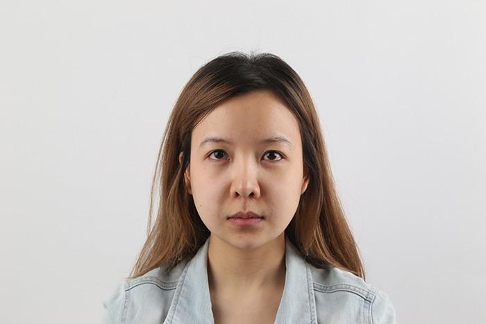 """แชร์ประสบการณ์ศัลยกรรม ล็อคหน้าเฉพาะจุด """"MINI Facelock"""" กับการล็อคคิ้ว แก้ปัญหาหางตา-คิ้วตก 1"""