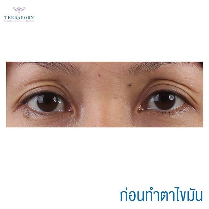 แชร์ประสบการณ์ทำศัลยกรรมตาสองชั้นพร้อมดึงหน้า-เฟสล็อค หลังทำไปแล้วแทบไม่มีใครเชื่อว่าอายุ 40 แล้ว! 1