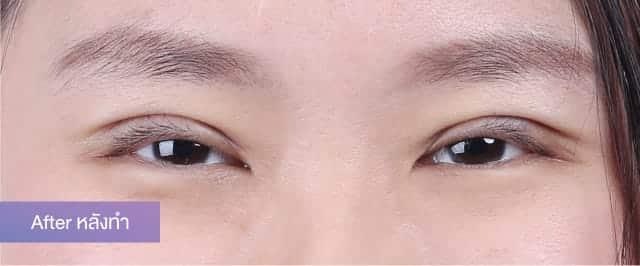 แชร์ประสบการณ์ศัลยกรรม เปลี่ยนตาชั้นเดียว ให้มีชั้นตาที่สวยเป็นธรรมชาติ บอกลาตาหมวย เปลี่ยนใบหน้าให้ดูมีเสน่ห์ ที่ธีรพรคลินิก 4