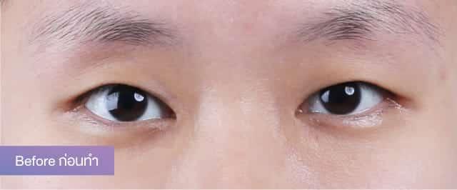 แชร์ประสบการณ์ศัลยกรรม เปลี่ยนตาชั้นเดียว ให้มีชั้นตาที่สวยเป็นธรรมชาติ บอกลาตาหมวย เปลี่ยนใบหน้าให้ดูมีเสน่ห์ ที่ธีรพรคลินิก 1