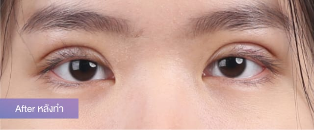 แชร์ประสบการณ์ศัลยกรรมตาสองชั้น จากแนตตี้ สาวหมวยตาชั้นเดียวให้เป็นสวยหวาน 4