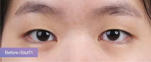 แชร์ประสบการณ์ศัลยกรรมตาสองชั้น จากแนตตี้ สาวหมวยตาชั้นเดียวให้เป็นสวยหวาน 3
