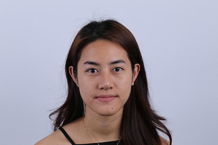 คุณพิม ญาดา อายุ 25 ปี กับการทำ ศัลยกรรมปรับชั้นตา ให้เท่ากัน 1