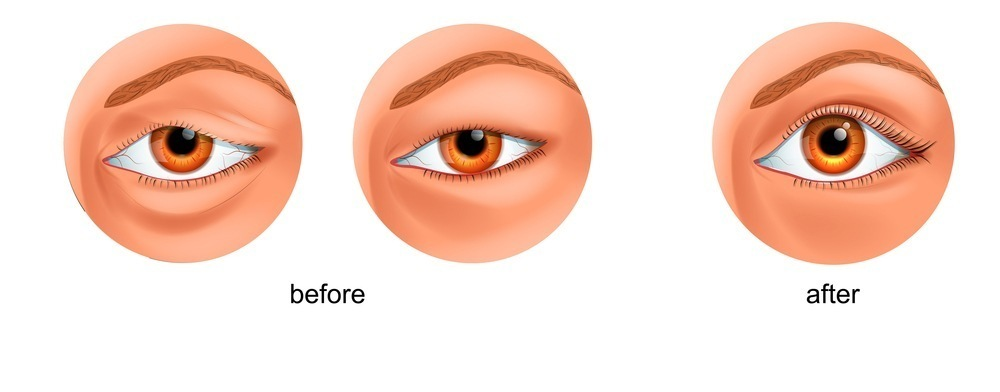 DOUBLE EYELID - มีตาสองชั้นสวยแบบธรรมชาติ ด้วยเทคนิคการผ่าตัดแบบกรีดสั้น 3