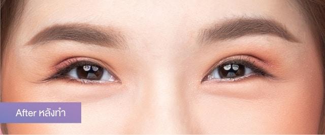 หัวตาตก เห็นชั้นตาแค่ปลายหางตา แก้ปัญหาให้มีชั้นตาสวยๆ ด้วยการทำตาสองชั้น กับเรื่องราวของน้องข้าวปั้นอายุ 20 ปี 2