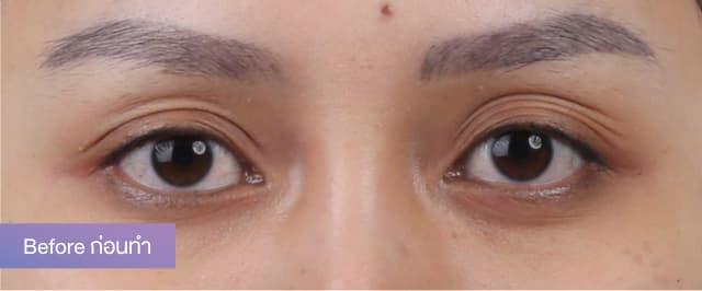 """คุณเจนนี่ ปิตินรา ดาราสาวกับการทำตาสองชั้นแก้ปัญหาชั้นตาพับ-ดูเหี่ยวย่นที่ """"ธีรพรคลินิก"""" 1"""