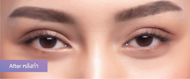 """คุณเจนนี่ ปิตินรา ดาราสาวกับการทำตาสองชั้นแก้ปัญหาชั้นตาพับ-ดูเหี่ยวย่นที่ """"ธีรพรคลินิก"""" 2"""