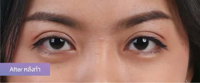 สวยพร้อมในทีเดียว กับการเสริมจมูกด้วยไขมันตนเอง พร้อมทำตาสองชั้น กับสาวกัมพูชาที่บินลัดฟ้ามาทำศัลยกรรมที่ธีรพรคลินิก 2