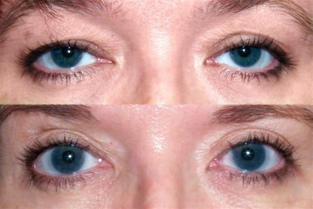 """""""ภาวะหนังตาตก"""" สาเหตุเกิดจากกล้ามเนื้อเปิดเปลือกตามีกำลังน้อย สามารถแก้ไขได้ด้วย """"การทำตาสองชั้น"""" หรือ """"ศัลยกรรมดึงหน้า Face Lock"""" 1"""