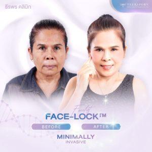 """เตรียมตัวเองให้พร้อม ก่อนเข้ารับการทำศัลยกรรมดึงหน้า """"Face Lock"""" ที่ """"ธีรพรคลินิก"""" กับข้อแนะนำดีๆ เพื่อความปลอดภัยของตัวคุณเอง 2"""